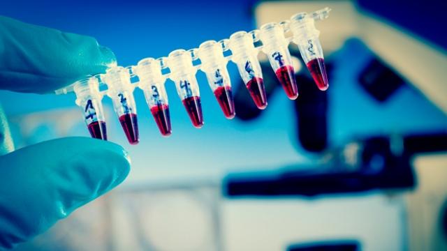 ebola virus vaccine production The recent ebola epidemic has galvanized the development of ebola virus vaccines and ebo-z ebola virus vaccine in expand production.